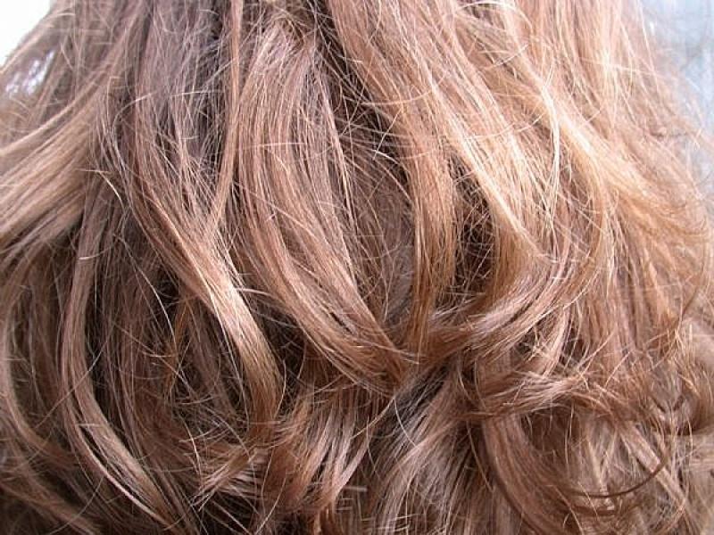 Védekezzen a haj korpásodása ellen!