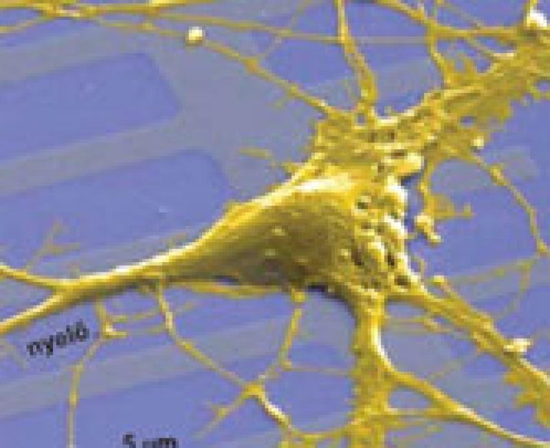 Éveket nyerhetnek a sclerosisos betegek