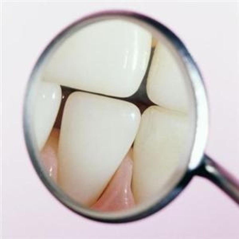 Az ápolatlan fogsor akár 13 évvel idősebbnek mutathat