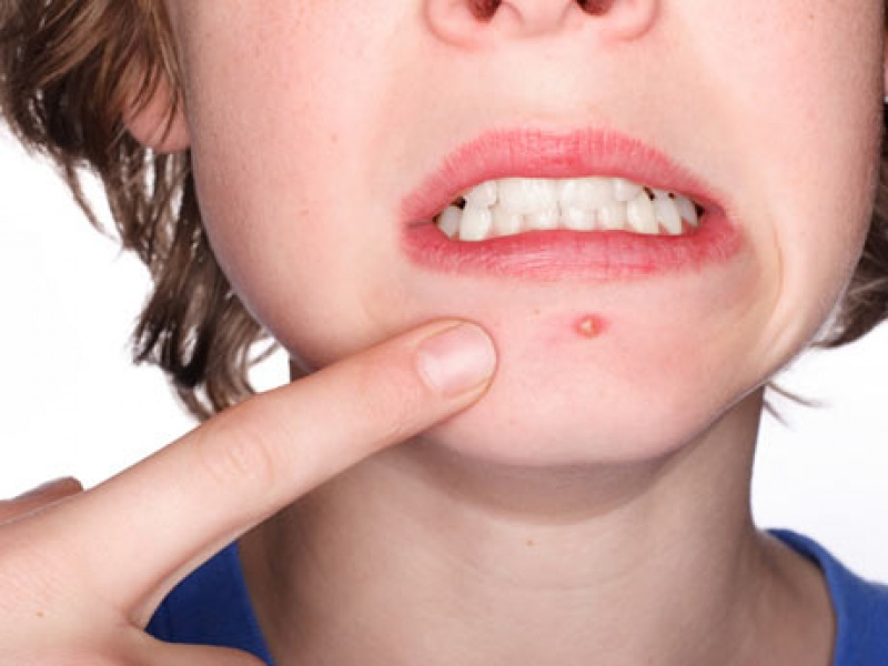 Egy utálatos bőrprobléma: a pattanás