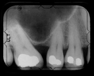 A fogak elvesztésének oka és ellenszere