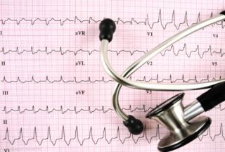 A szívinfarktus kockázata megbecsülhető