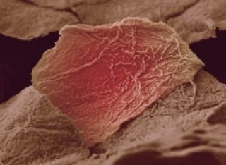 Bőrsejtekkel a rák ellen