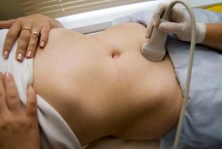 Ultrahangvizsgálat a fogantatásért
