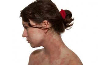 Kiütés, vagy allergia? Mi a különbség?