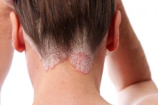 A három leggyakoribb bőrprobléma és ezek kezelése