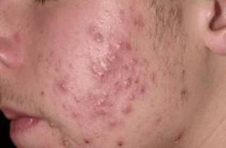 A botox bőrbetegségek kezelésére is alkalmas