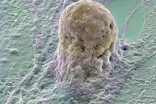 Megtalálták a módszert, amivel minden betegség gyógyítható?