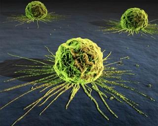 A férfiak gyakrabban halnak bele a rákba