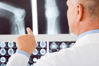 Eredmények a csontritkulás elleni küzdelemben