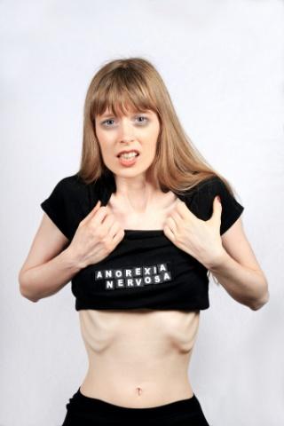Anorexia és gyermekvállalás