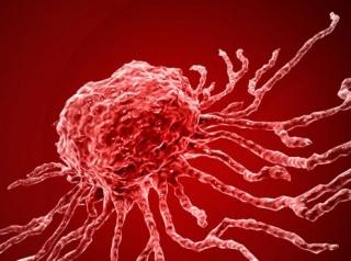 Egyre több daganatos betegség gyógyítható  őssejtbeültetéssel