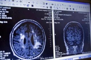 A túlzott vasbevitel növelheti az Alzheimer-kór kockázatát