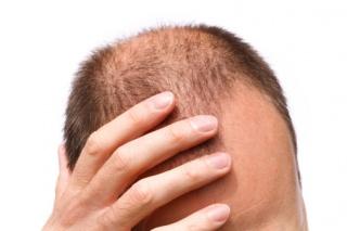 A hajhullást az immunrendszer betegsége is okozhatja