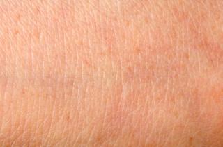 Hogyan lassítható a bőr öregedése?