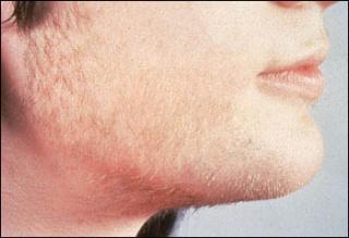 PCOS: az önbizalom-romboló tünetek kezelhetők!