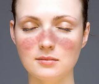 Az UV-sugárzás rontja a szisztémás lupus tüneteit