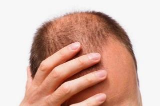 Gyakran áll hormonzavar a hajhullás hátterében