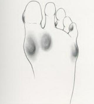 Rendszeres lábápolással a bőrkeményedés ellen