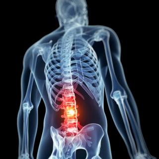 Aktív fájdalomcsillapítással jól kezelhető az idegbecsípődés