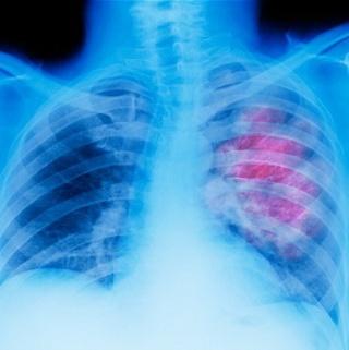 A tüdődaganatok egy része ártalmatlan lehet