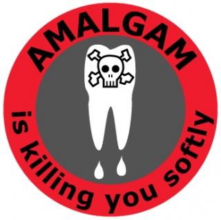Amalgám – egy régóta fennálló probléma