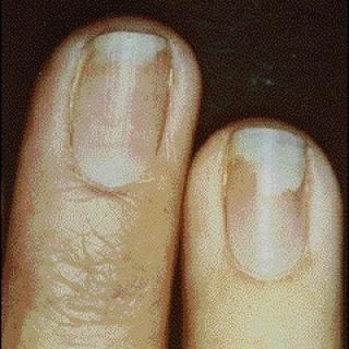 Súlyos következményekkel is járhat a műköröm-allergia