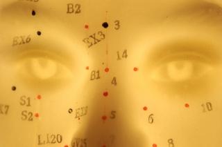Valóban hatásos az akupunktúra