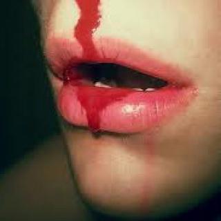 Vérzékenység állhat a gyakori orr- vagy fogínyvérzés mögött