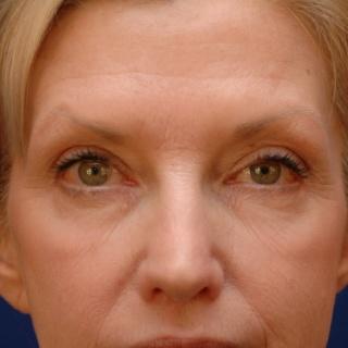 A szemhéjremegés oka és kezelése