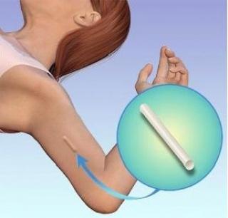 Bőr alá ültethető fogamzásgátló implantátum – egy ritkán választott lehetőség