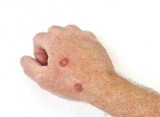 Foltok a bőrön: mikor ártalmatlan, és mikor veszélyes?