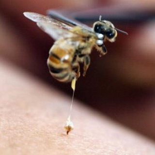 A méh- és a darázsszúrás kezelése