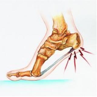 Achilles-ín-probléma is okozhat sarokfájdalmat
