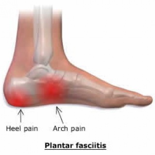 A lúdtalp okozta fájdalom kezelése