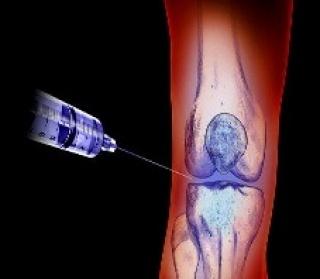 Aktív fájdalomcsillapítással késleltethető a protézisbeültetés