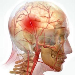 az agyi erek károsodása magas vérnyomásban