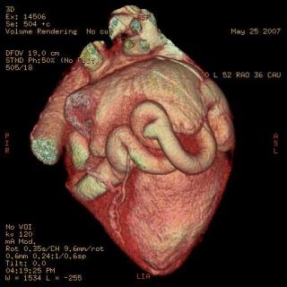 Szívinfarktus és öröklődés: egyedülálló kutatás ikerpárok körében
