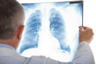 Újabb információk a tüdőrák kialakulásáról