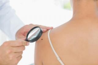 Immunterápiával a melanóma ellen