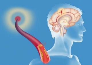 Ez komoly áttörés lehet a stroke kezelésében