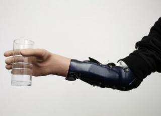 Óriási áttörés: idegekkel működő protézist ültettek be