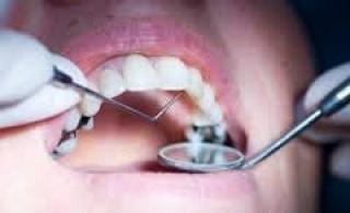 Mivel jár a kezeletlen fogszuvasodás?