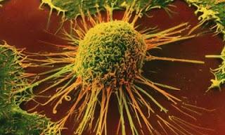 Áttörés a rákkutatásban: közelít a megoldás?
