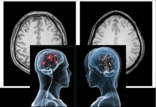 Jobban működik a nők agya, mint a férfiaké