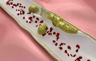 Trombózist okozhat néhány gyakran használt szer