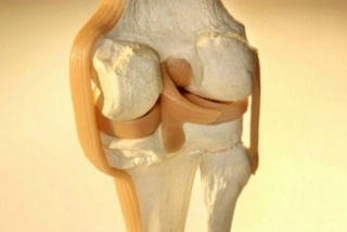 A csontritkulás hatékony kezelése