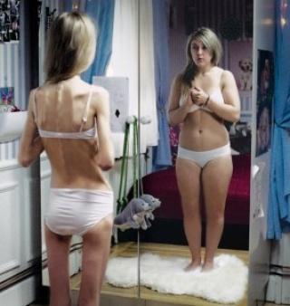 Az anorexia és bulimia kezelése