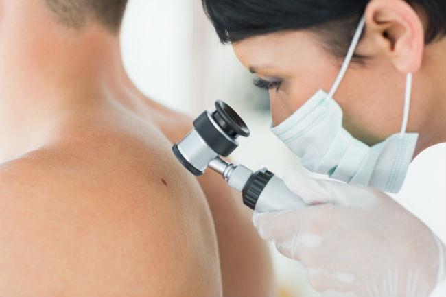 Egyre több a hámsejtekből kiinduló bőrrák