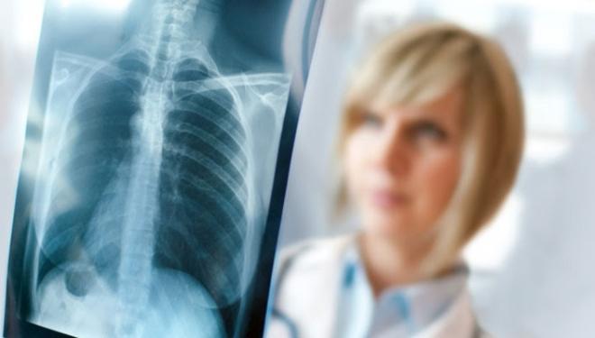 Tüdőszűrés: kinek, mikor, miként?